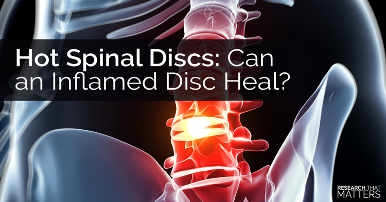 Hot Spinal Discs